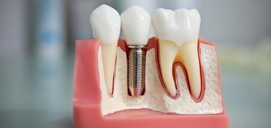 implantatsiya-zubov-min