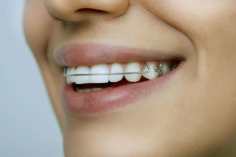 Выравнивание зубов в Хабаровске