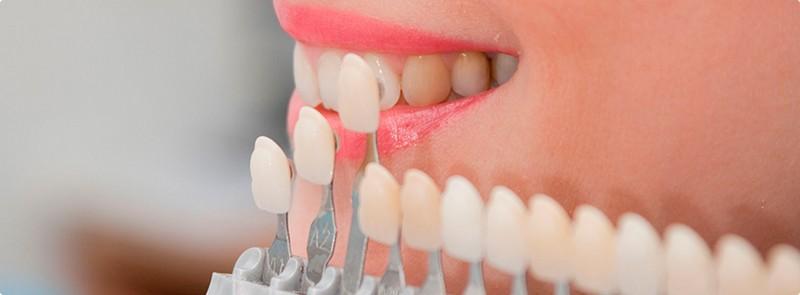 Как подобрать зубной протез