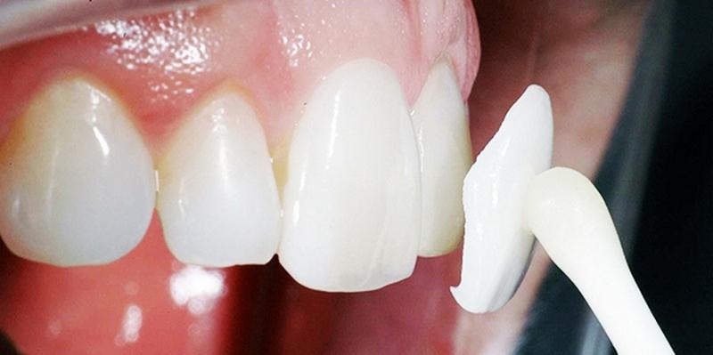 Протезирование зубов в Хабаровске