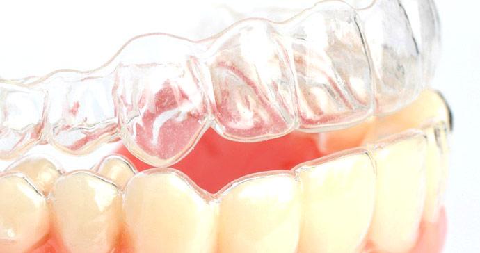 Как выглядят элайнеры на зубах