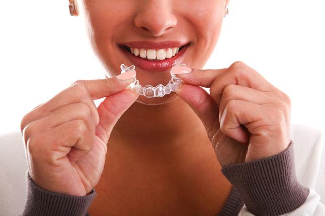 Прозрачные капы для выравнивания зубов