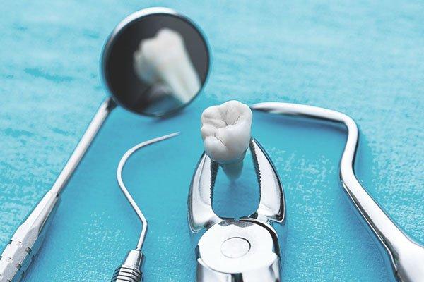 Удаление зубов в Хабаровске